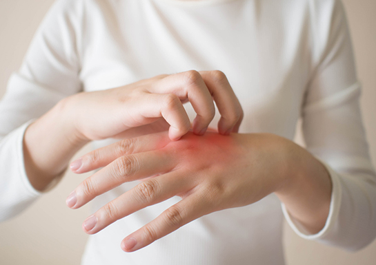 درماتیت و خشکی پوست (انواع، علل و علائم)